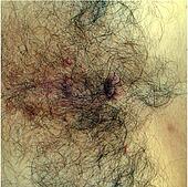 Diseased Skin
