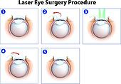 Laser Eye Surgery Procedure