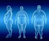 Overweight Female