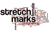 Stretch marks word cloud