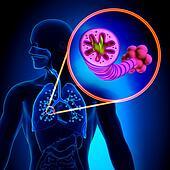 COPD - Chronic obstructive pulmonar