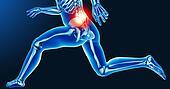 Leg joint pain