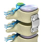 Spinal fixation system