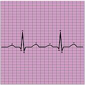 ecg of heart beat