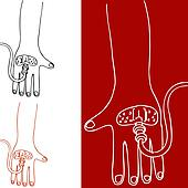 Intravenous Therapy Hand