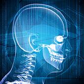X-ray image of a man's head