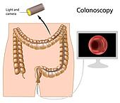 Colonoscopy procedure, eps8