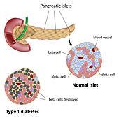 Pancreatic islet in diabetes, eps8