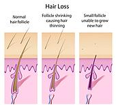 Hair loss process, eps8