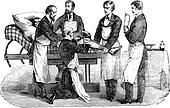 Amputation of the thigh. Positions of the surgeon and assistants, vintage engraving.