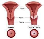 Cervical cancer, eps8