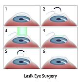 Lasik eye surgery procedure, eps10