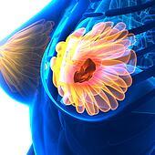 Breast Cancer - Female Anatomy - isolated on white