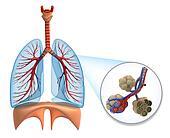 Alveoli in lungs
