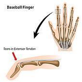 Baseball finger, eps8