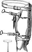 Fig. 89. Leg compression of the aorta using a leg compression tool, vintage engraving.