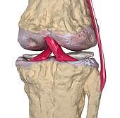 Osteoarthritis : Knee joint with li