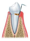 Early Stage Gingivitis