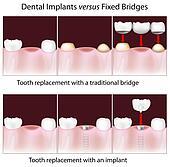 Dental implants versus fixed bridge