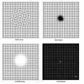 Grid test for vision