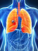 Male lung - cancer