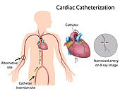Cardiac catheterization, eps10