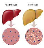Fatty liver disease, eps10