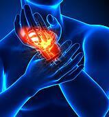 Wrist pain - hurt trauma