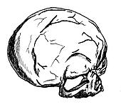 Top of Skull 1