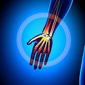 Hand / Carpals / Metacarpals / Phal