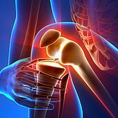 Pain Knee - Anatomy Rays