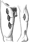 Fig. 762. - Showing groin point at which you can perform ligatio