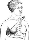 Bandage crosses a breast, vintage engraving.