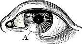 Symblepharon of the lower eyelid