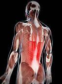 Musculare backache
