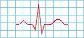 Electrocardiogram Sinus Rhythm