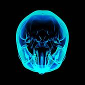 Isolated human x ray skull on black background - top view